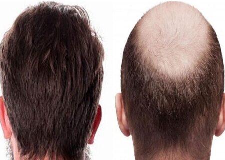 احکام شرعی   آیا کاشت مو مانع وضو و غسل است؟